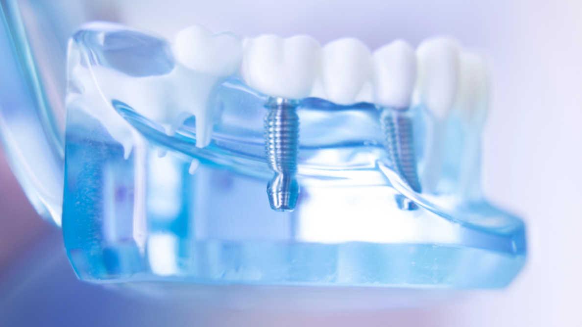 Uusi teknologia voi parantaa metallisten implanttien käytettävyyttä
