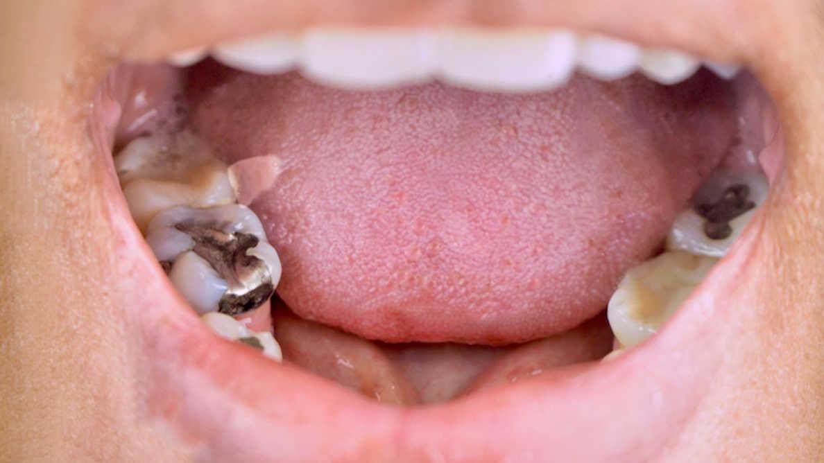P-Irlannin British Dental Association: Vaiheittainen luopuminen hammasamalgaamista on mahdotonta