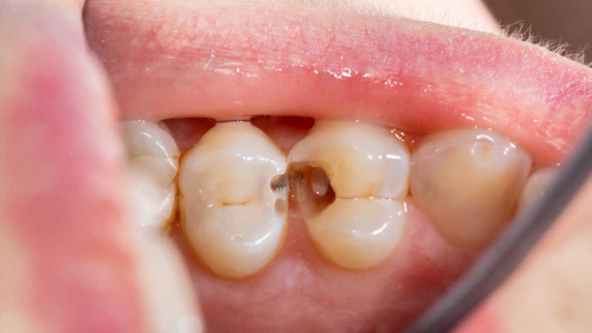 Tutkimus tarjoaa uutta tietoa parodontiitista sekä kehon suojavasteesta